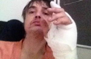 Pete Doherty hospitalisé après une mauvaise rencontre... improbable