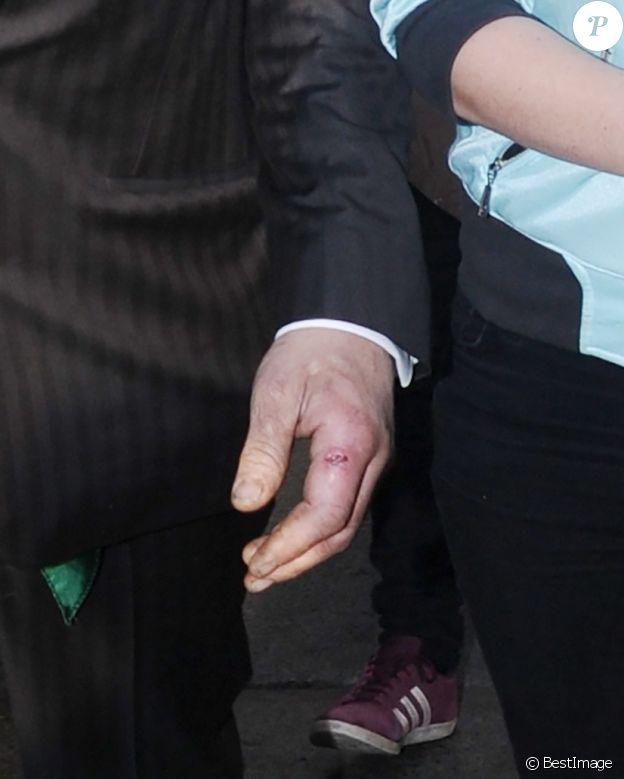 Pete Doherty et sa compagne Katia de Vidas se baladent dans le quartier de Shoreditch à Londres le 29 avril 2019. Pete a une vilaine blessure à l'index gauche.