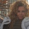 Manuela Lopez atteinte d'un cancer de la peau : des photos choc' dévoilées