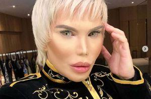 Rodrigo Alves : Son nez tombe après une énième opération