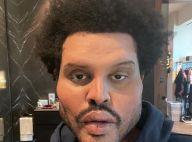 The Weeknd métamorphosé : il retire ses bandages et dévoile son nouveau visage