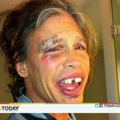 Steven Tyler : Très amoché après une chute, il est méconnaissable