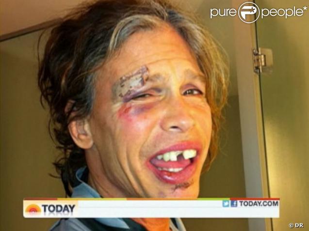 Le visage de Steven Tyler après sa chute le 25 octobre 2011 dans la salle de bain de sa chambre d'hôtel, au Paraguay.