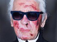 Karl Lagerfeld et Iggy Pop : Visage tuméfié, propos insensés, la pub qui choque...