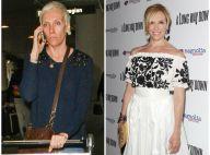 Toni Collette méconnaissable : Crâne rasé, joues creusées et gros coup de vieux