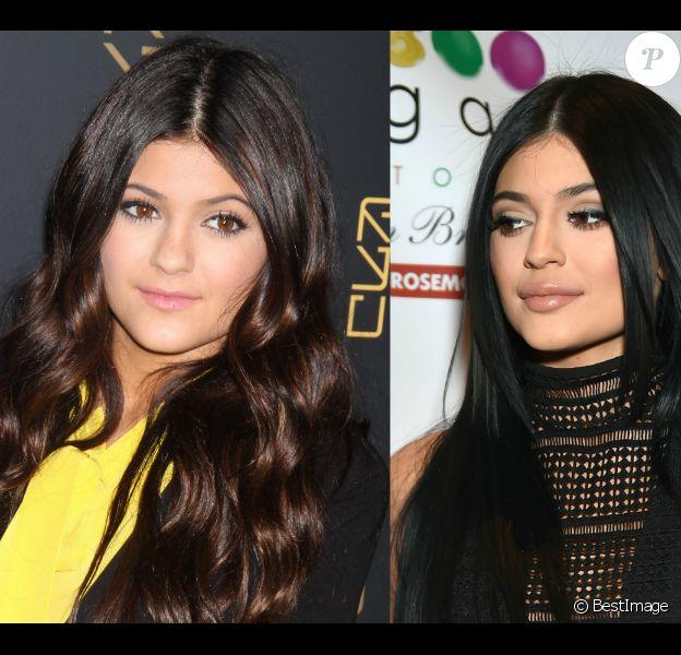 Kylie Jenner en 2012 et en 2015. La star de 17 ans a admis avoir eu recours à des injections pour augmenter le volume de ses lèvres.