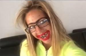 Maddy, la bombe de QVEMF enlaidie : Dents cassées, pustules, monosourcil...