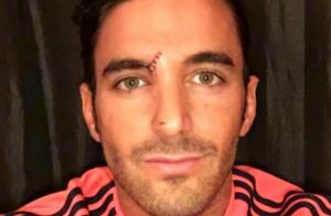 Thomas Vergara blessé au visage : La photo qui affole la Toile !