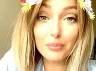 Caroline Receveur révèle comment elle a mis fin à ses problèmes de peau