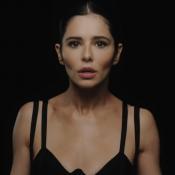 """Cheryl Cole a subi des changements physiques : """"Mon visage a changé"""""""