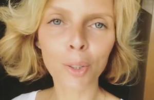 Sylvie Tellier perd ses cheveux : La maman de Roméo