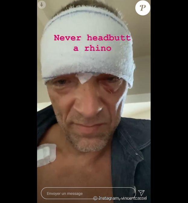 Vincent Cassel dévoile son visage tuméfié sur Instagram, le 22 mai 2020. L'acteur a été victime d'un accident de scooter près de Biarritz, le 20 mai.