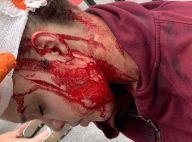 Michael Jackson : Sa nièce victime d'une tentative de meurtre, les photos choc