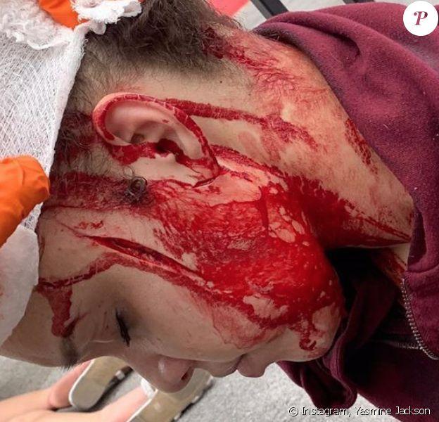 La petite-fille de Joe Jackson, Yasmine, gravement blessée après une agression à l'arme blanche à caractère raciste. Las Vegas, le 30 mai 2020.