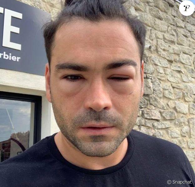 Ricardo victime d'une allergie, le 3 juillet 2020.