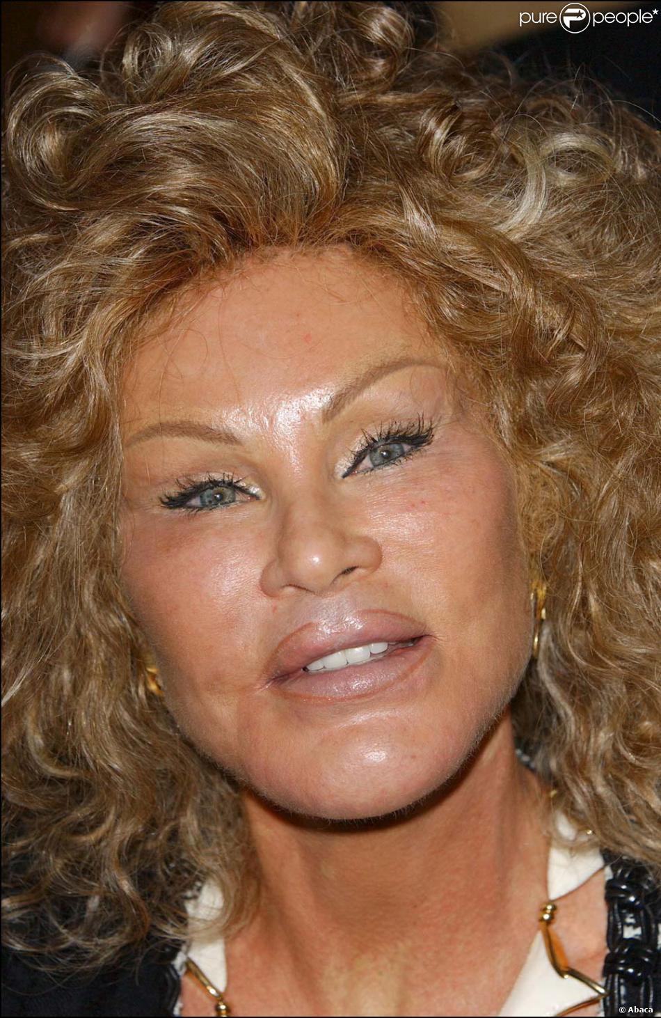 Jocelyn Wildenstein ou les déboires de la chirurgie esthétique dans toute leur splendeur !