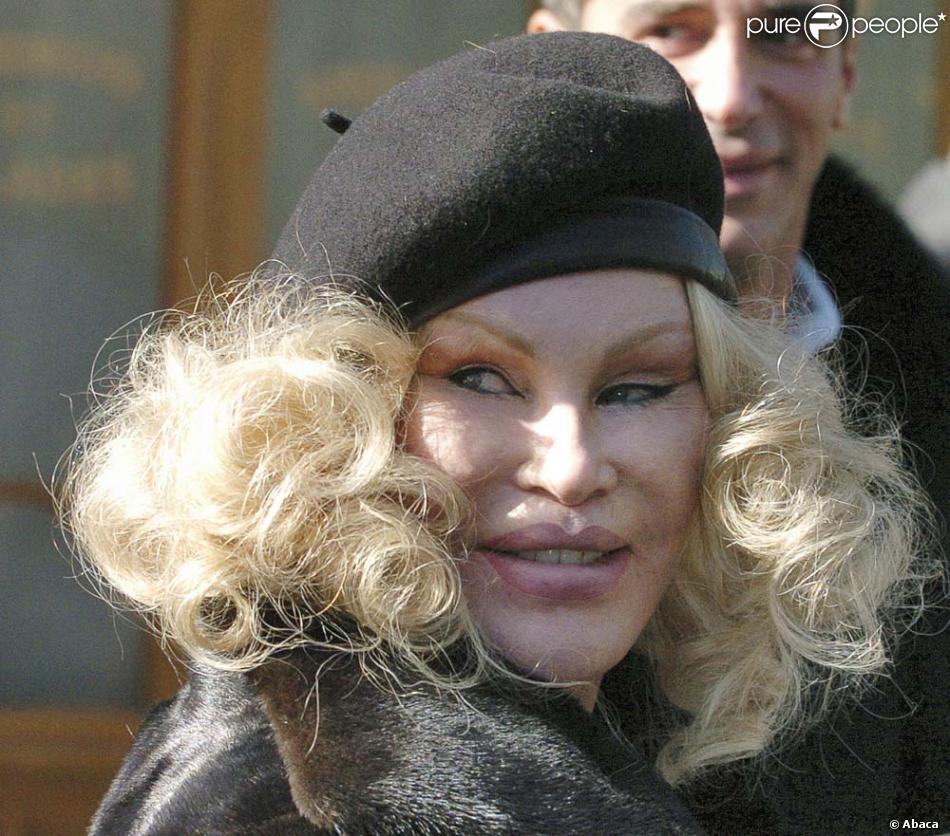Jocelyn Wildenstein : un visage déformé par la chirurhie esthétique