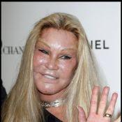 Jocelyn Wildenstein a dépensé 3 millions d'euros en chirurgie esthétique pour... ressembler à un chat ! Incroyable !