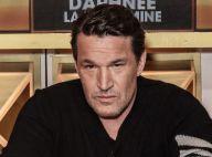 Benjamin Castaldi le nez très amoché : photo de sa sale blessure