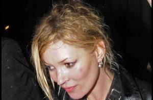 Kate Moss : méconnaissable et pas très fraîche... vous avez dit glamour ?