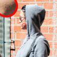 Katy Perry sort d'un rendez-vous chez le médecin, mercredi 4 août à Los Angeles, et apparaît avec de nombreux boutons sur le visage.
