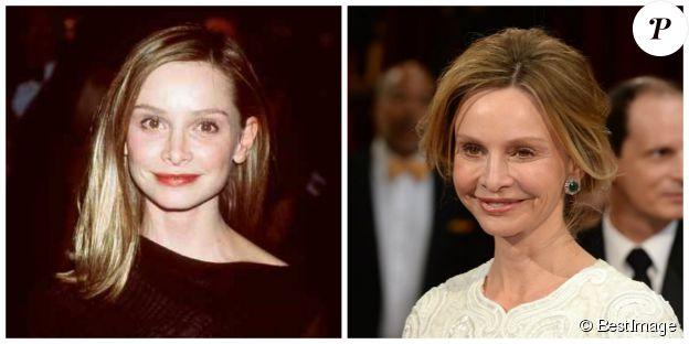 Calista Flockhart en 1999 et 2014 - ©BESTIMAGE