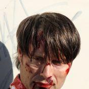 Mads Mikkelsen en sang et le visage tuméfié : Hannibal comme on ne l'a jamais vu