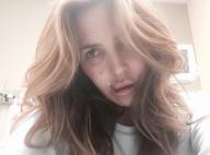 Jillian Barberie mordue au visage par un chien : L'animatrice star est défigurée
