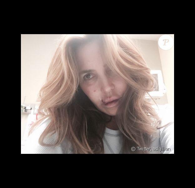 Jillian Barberie s'est fait mordre par le chien d'un ami. Elle a publié une photo d'elle à l'hôpital sur sa page Twitter, le 13 mars 2016.