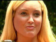 Aurélie Dotremont (Moundir et...) : Son visage gonflé choque...