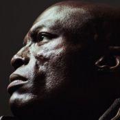 Seal et ses cicatrices : Le jour où il a révélé sa maladie