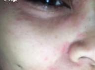 Blac Chyna : Son visage est ravagé et son fiancé Rob Kardashian fait grève