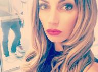 Nadège Lacroix : Photo choc de son visage après opération