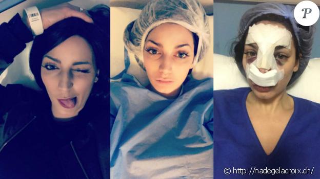 Nadège Lacroix dévoile une photo prise après son opération du nez. Décembre 2016.