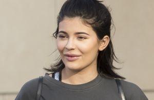 Kylie Jenner : Lèvres gonflées et traits déformés, ses excès brillent au naturel