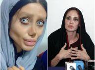 Angelina Jolie : Une fan subit 50 opérations de chirurgie pour lui ressembler