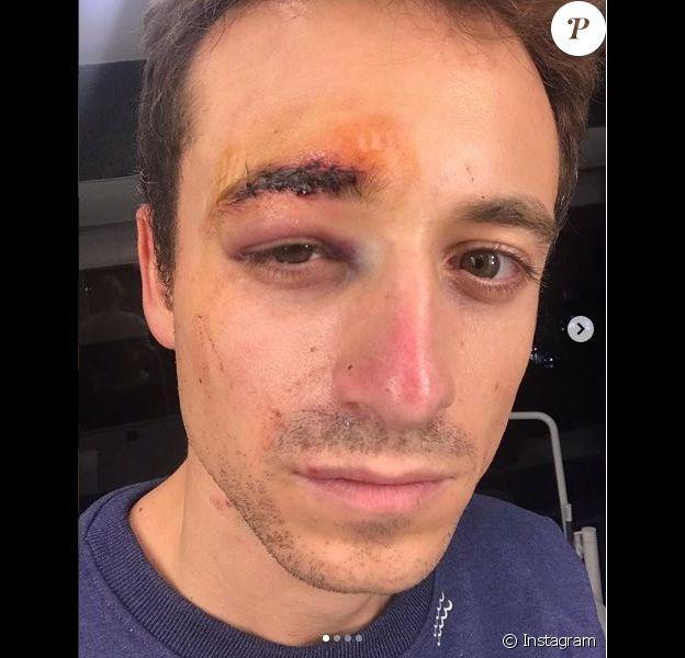 Hugo Clément a été blessé dans les manifestations des Gilets jaunes à Paris le 1er décembre 2018, photo publiée après son passage par les urgences de l'hôpital Bichat sur le compte Instagram de sa compagne Alexandra Rosenfeld. Hugo s'était fait voler son téléphone et n'avait plus accès à ses comptes.