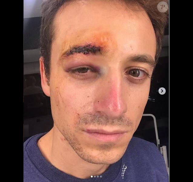 Violences à Paris. Le journaliste Hugo Clément blessé au visage