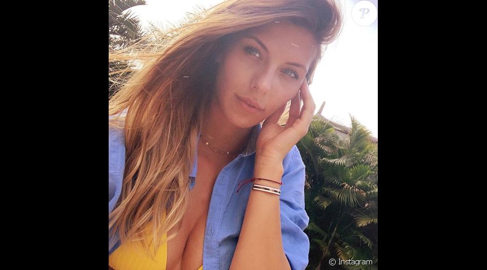 Camille Cerf dévorée par les moustiques à Maurice, le 5 juin 2019.