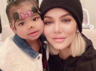 Khloe Kardashian transformée, son nouveau visage surprenant