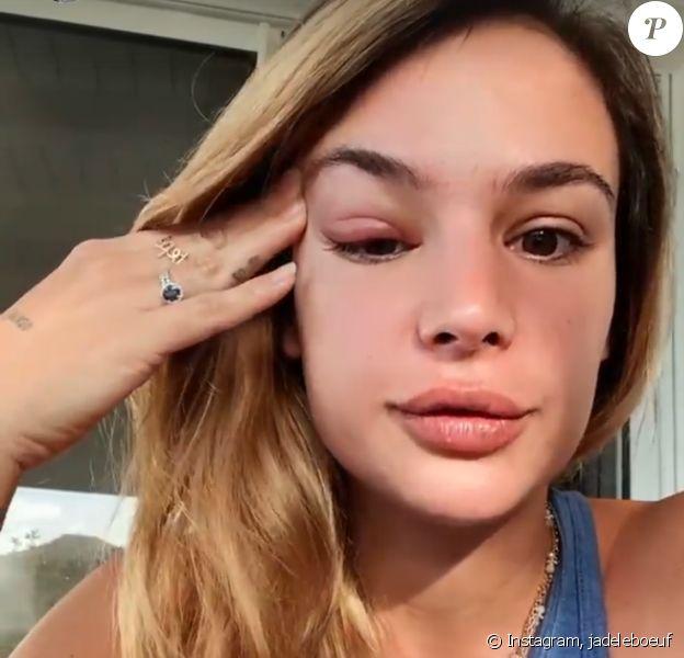 Jade Leboeuf dévoile son oeil très gonflé sur Instagram - 14 janvier 2021