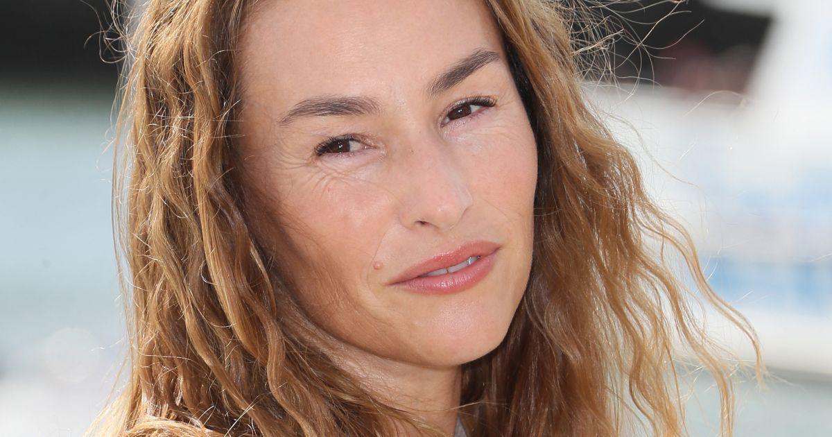Vanessa Demouy soupçonnée d'avoir fait gonfler ses pommettes : mise au point franche - Pure People