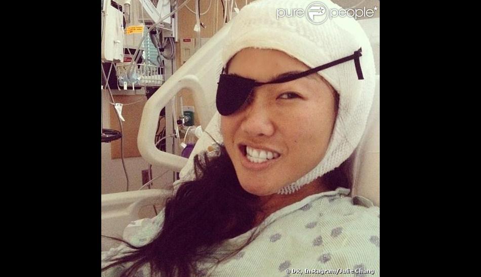 Atteinte d'une tumeur au cerveau, Julie Chang a ouvert les portes de sa lourde opération.