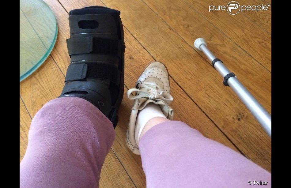 Véronique Genest, le pied dans le plâtre après sa blessure dans L'oeuf ou la poule