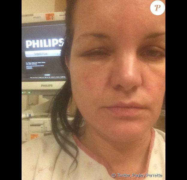 Pauley Perrette, défigurée par une allergie à sa teinture, image publiée sur son compte Twitter le 19 juillet 2014