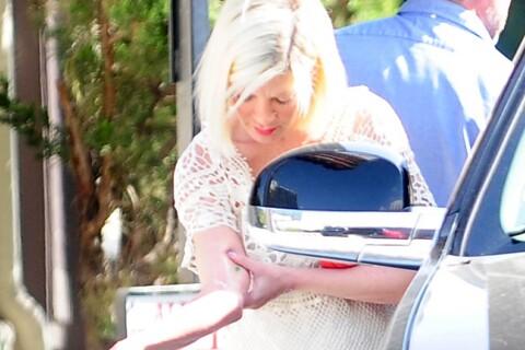 Tori Spelling hospitalisée : Gravement brûlée, elle subit une greffe de peau