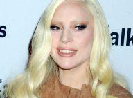 Lady Gaga : Traits tirés et lèvres gonflées, la star est méconnaissable