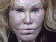 Jocelyn Wildenstein : La femme chat agresse son petit ami à coups de ciseaux