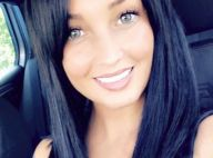 Aurélie Dotremont attaquée : Elle dévoile son visage tuméfié !