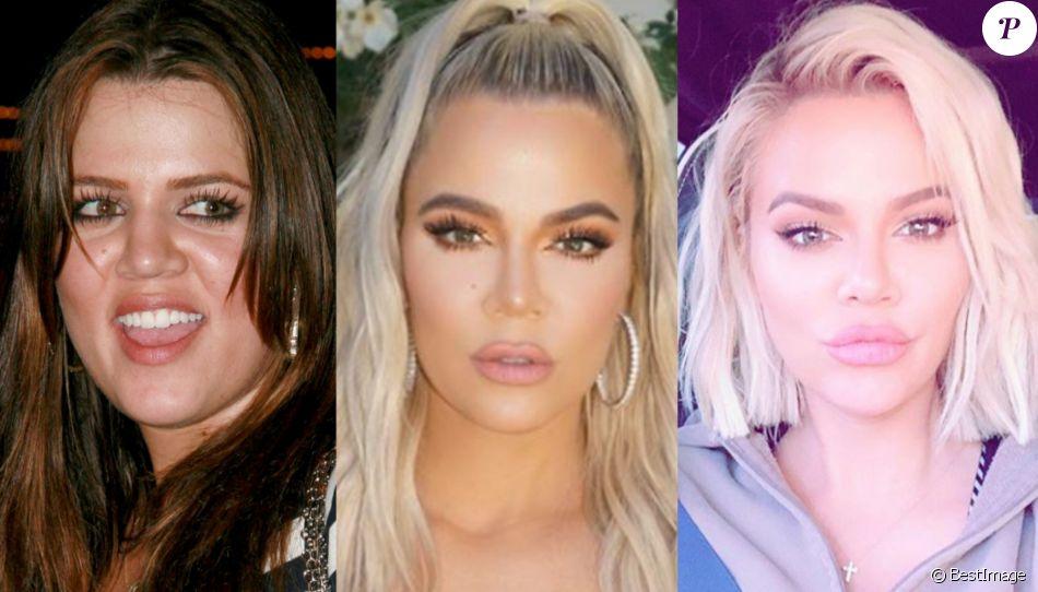 Khloé Kardashian méconnaissable : les moments forts de sa transformation
